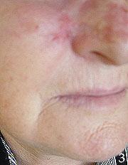 Rak skóry policzka po kriochirurgii