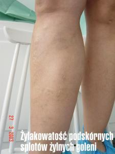 Żylakowatość podskórnych splotów żylnych goleni